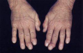 reuma handen
