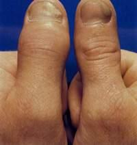 reuma en psoriasis